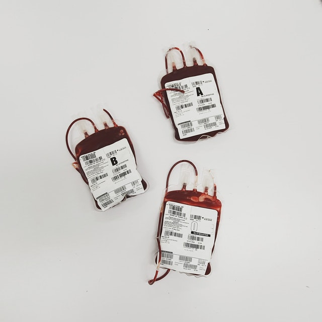 pexels charliehelen robinson 4531307 - Transfusão de Sangue em Cães